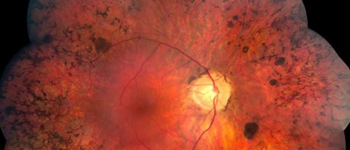 1990. Médicos cubanos anuncian con éxito el tratamiento del glaucoma, la conjuntivitis y la retinitis pigmentosa con ozono.