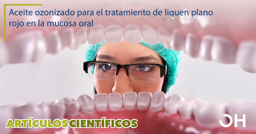 Mejora del tratamiento complejo del liquen plano rojo de la mucosa oral