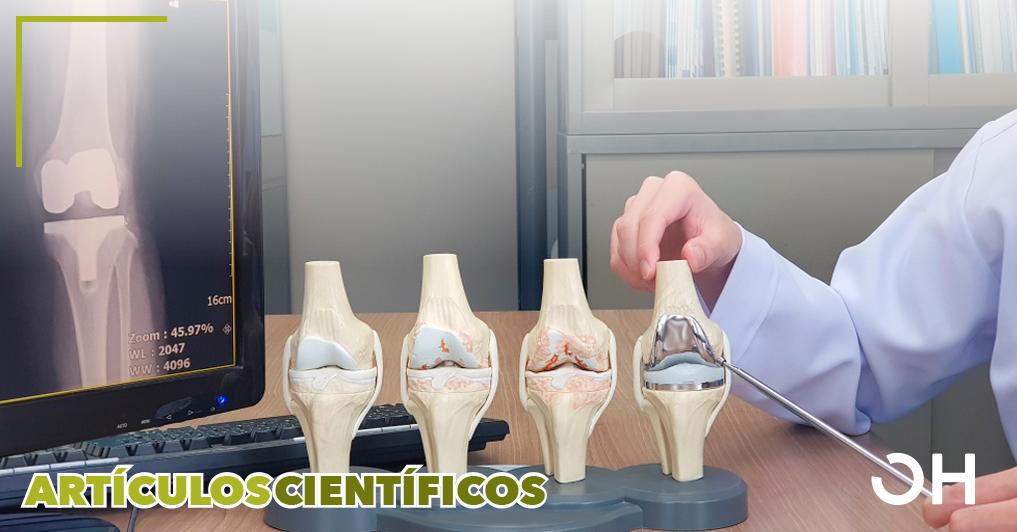 Eficacia del aceite ozonizado tópico en la osteoartritis grave: un estudio aleatorizado, triple ciego y controlado con placebo